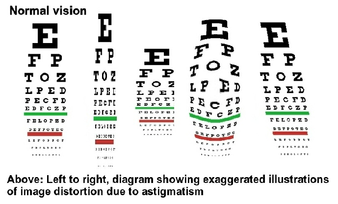 Astigmatism Distortion With Glasses